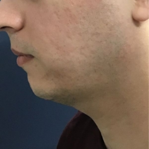 mans profile, after microneedling acne scarring is gone
